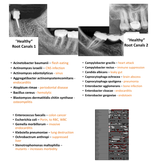 pathogens in root canals