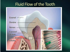 fluid flow in tooth