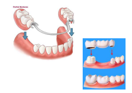 dental partials