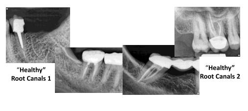 root canal x-rays