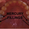 mercury amalgam fillings