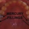mercury amalgam fillings