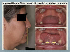 Impaired Mouth clues