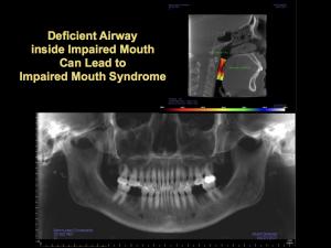 deficient airway