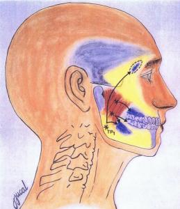 diagram showing masseter trigger point