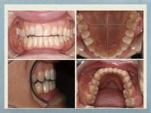 clincial dental photos