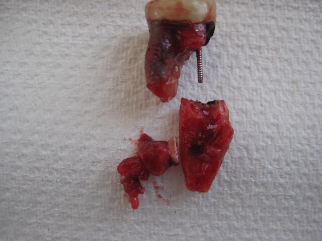 extracted root canal tooth