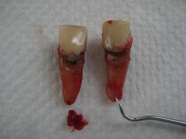 extracted root canal teeth