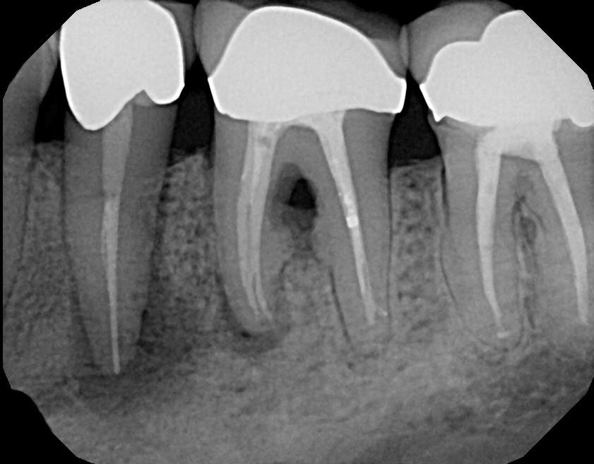 xray of root canal teeth