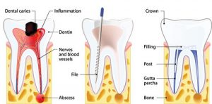 root canal diagram