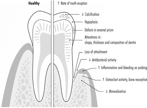 dental effects of vitamin D deficiency